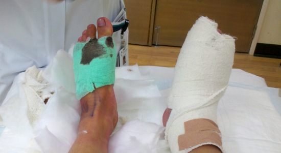 First bandages removed from left foot