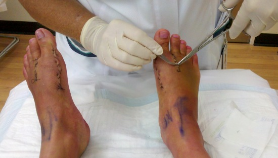 Nurse removing sutures from my feet