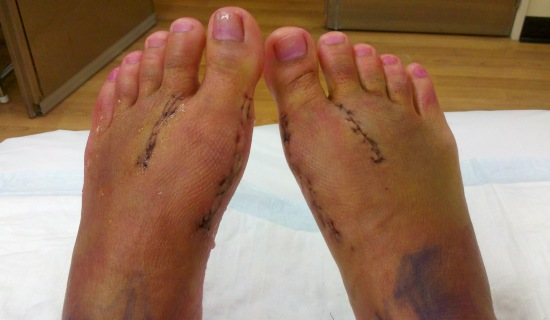 Feet after sutures have been removed.