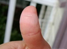 My cut thumb