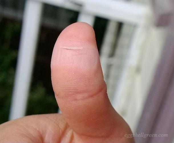 My cut thumb